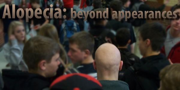 Diagnosed with alopecia areata universalis, freshman Parker Rexford makes his way through the halls.